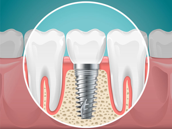 dental implant cost in Vestal